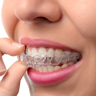 Invisalign is part of our Edwards cosmetic dentistry to straighten your smile.