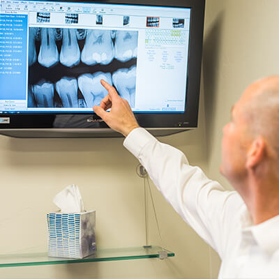 We offer CEREC same-day crowns in our Edwards office.